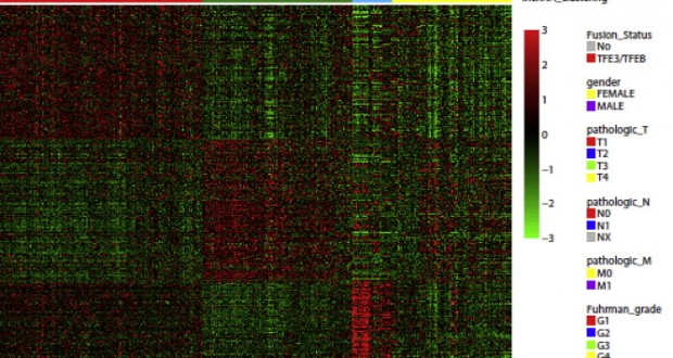 Characterization of long non-coding RNA transcriptome in clear-cell renal cell carcinoma by next-generation deep sequencing