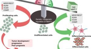 A single RNA molecule links neuroblastoma to renal carcinoma