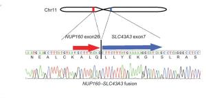 RNA-Seq identifies skin cancer-causing fusion gene