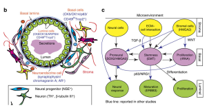 RNA-Seq links normal stem cells to aggressive prostate cancer