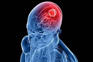 RNA-Seq dispels link between viral infection and brain tumors
