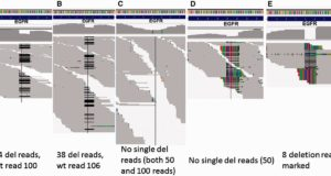 Commonly used RNA-seq alignment and variant calling programs perform poorly in detecting intermediate long indels (>2 bases) that are clinically actionable