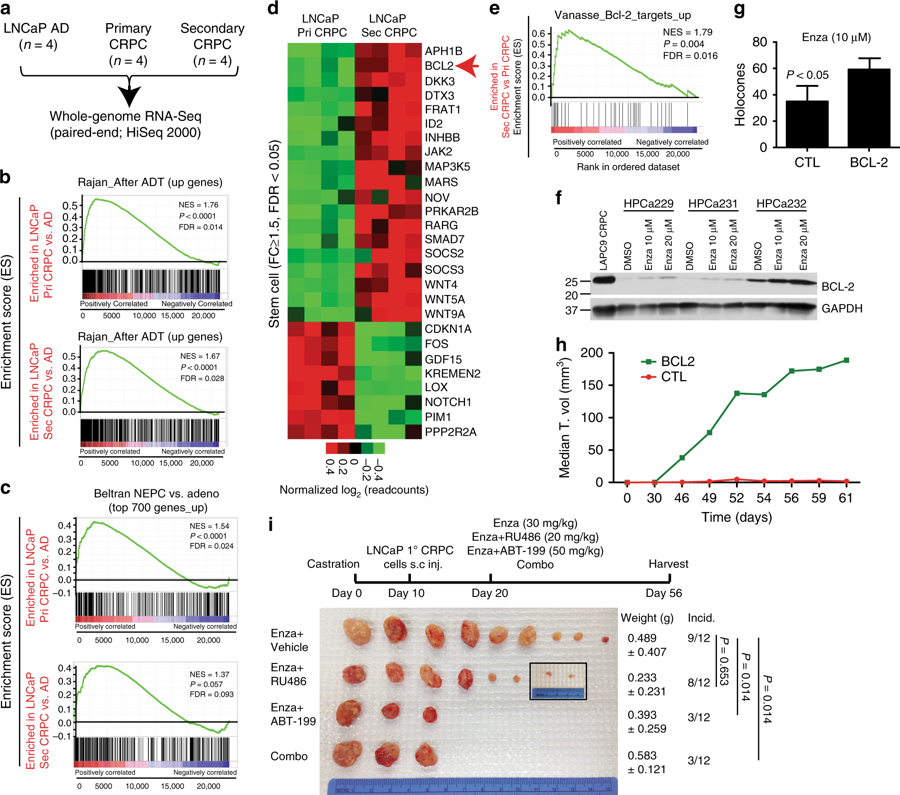 RNA-Seq identifies possible cause of resistance to prostate